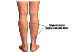Признаки тромбоза вен нижних конечностей