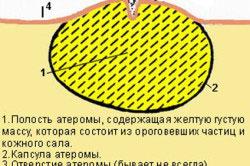Структура атеромы