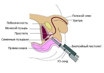Склероз предстательной железы симптомы лечение