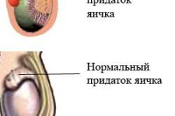 Эпидидимит