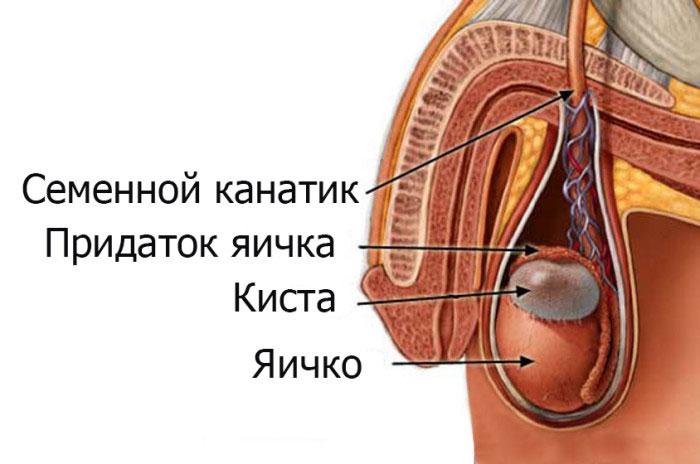 болит придаток левого яичка
