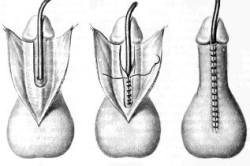 Метод уретропластики