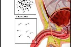 Уменьшение сперматозоидов