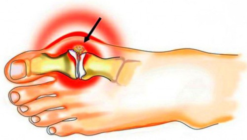 Симптомы подагры у мужчин: причины возникновения, лечение