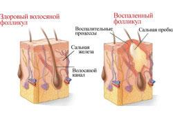 Развитие прыщей в волосяных покровах