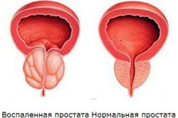 Простатит - воспаление простаты