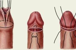 Обрезание при фимозе