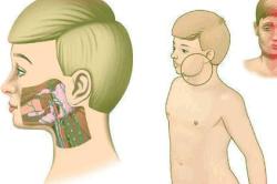 Можно ли вылечить мужское бесплодие: факторы и препараты