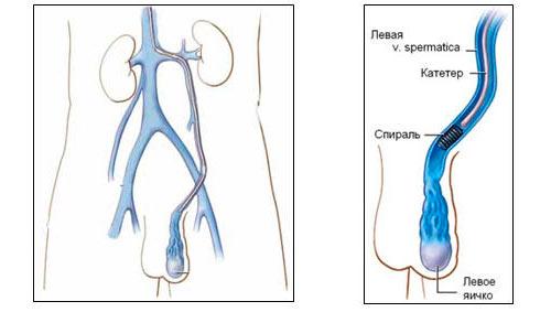 Хирургическое лечение варикоцеле