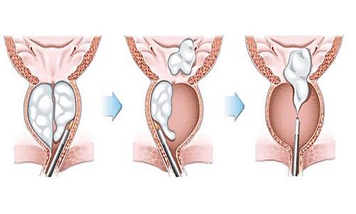 Скрининг предстательной железы