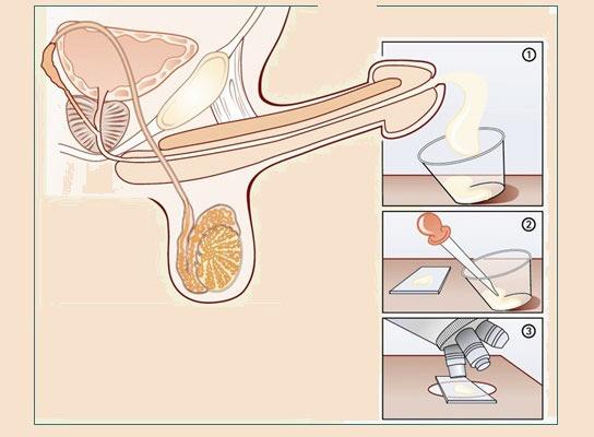 Терминальный рак предстательной железы
