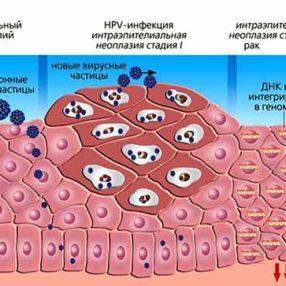 Что такое псориаз на половом органе и как его лечить