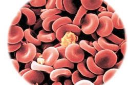 Кровь при эритремии под микроскопом