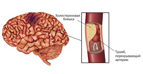 Инсульт - нарушение кровообращения участка мозга