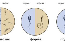 Сперматогенез - норма и дефекты