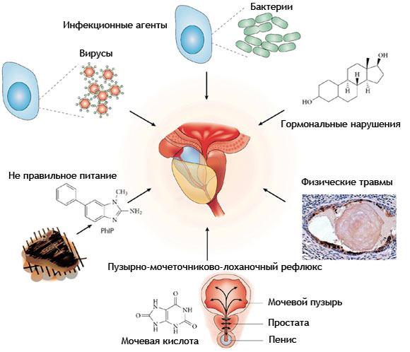 Лекарственное средство о аденомы простаты