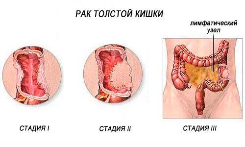 можно ли похудеть если есть болгарский перец