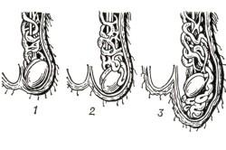 1, 2, 3 стадия варикоцеле