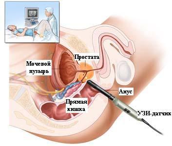 Коричневая сперма воздержание