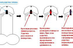 Операция по удлинению уздечки