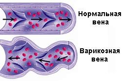 Застой спермы может произойти из-за варикозного расширения вен