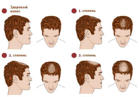 Как быстро отрастить длинные волосы (проверенные способы,