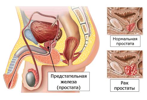 Болезнь и норма предстательной железы