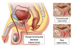 Химическая кастрация производится при обнаружении двухсторонней опухоли яичек