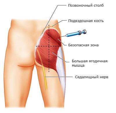 тестостерона для спортсмена Уколы