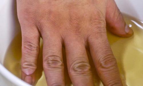 Лечение гипергидроза ладоней уксусом