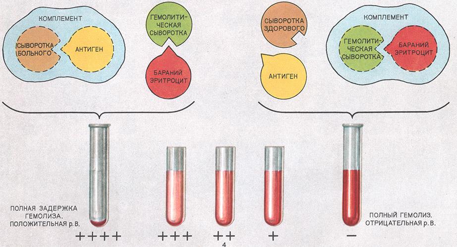 норма глюкозы и холестерина в крови