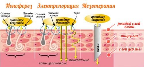 Сравнение методов лечения гипергидроза