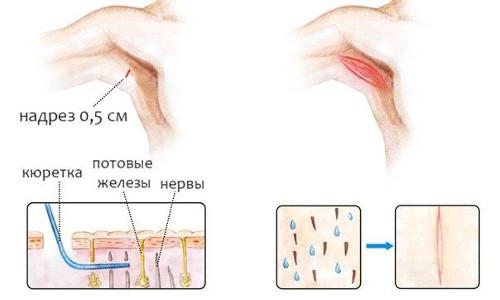 Хирургическое лечение гипергидроза