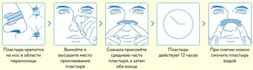 Схема применения назального пластыря