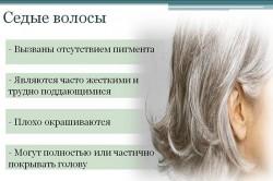 Особенности седых волос
