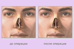 Резекция носовой перегородки