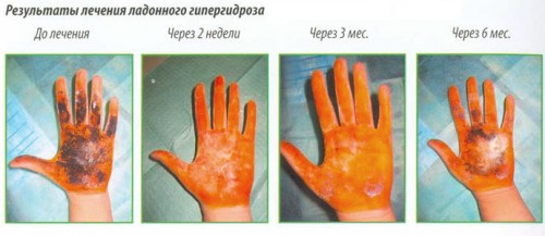Результат лечения ладонного гипергидроза
