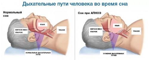 Сужение дыхательных путей во сне