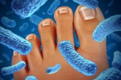 Уничтожение микробов